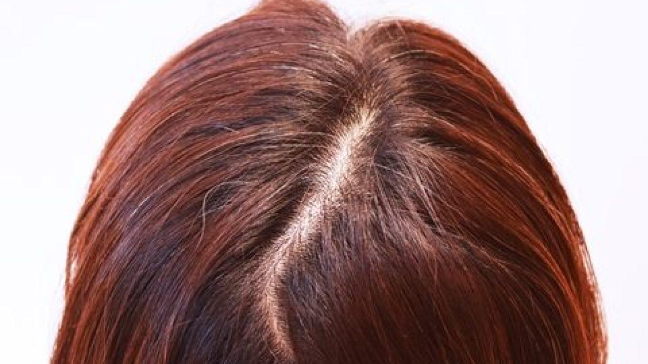 ストレス 頭皮かさぶた カユカユ頭は「頭皮湿疹」かも!