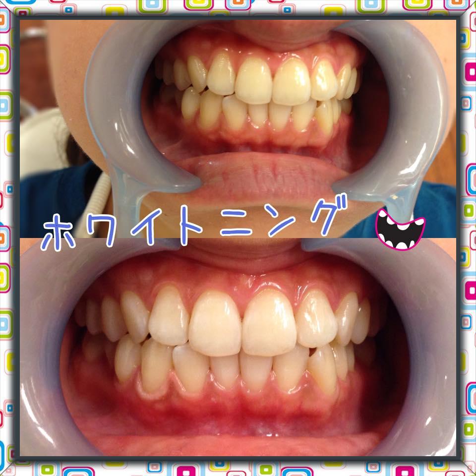 歯医者さんでホワイトニング★憧れの白い歯へ★