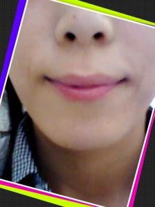 歯の矯正経過報告~約2ヶ月~
