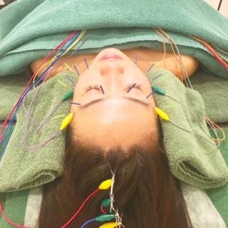 1回の施術で実感!美容鍼6つの効果
