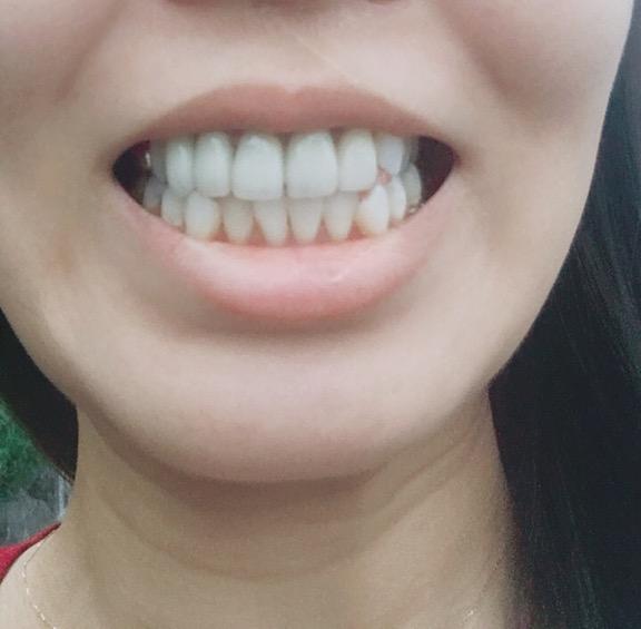 【美容】結婚式の前にしたセラミック差し歯について