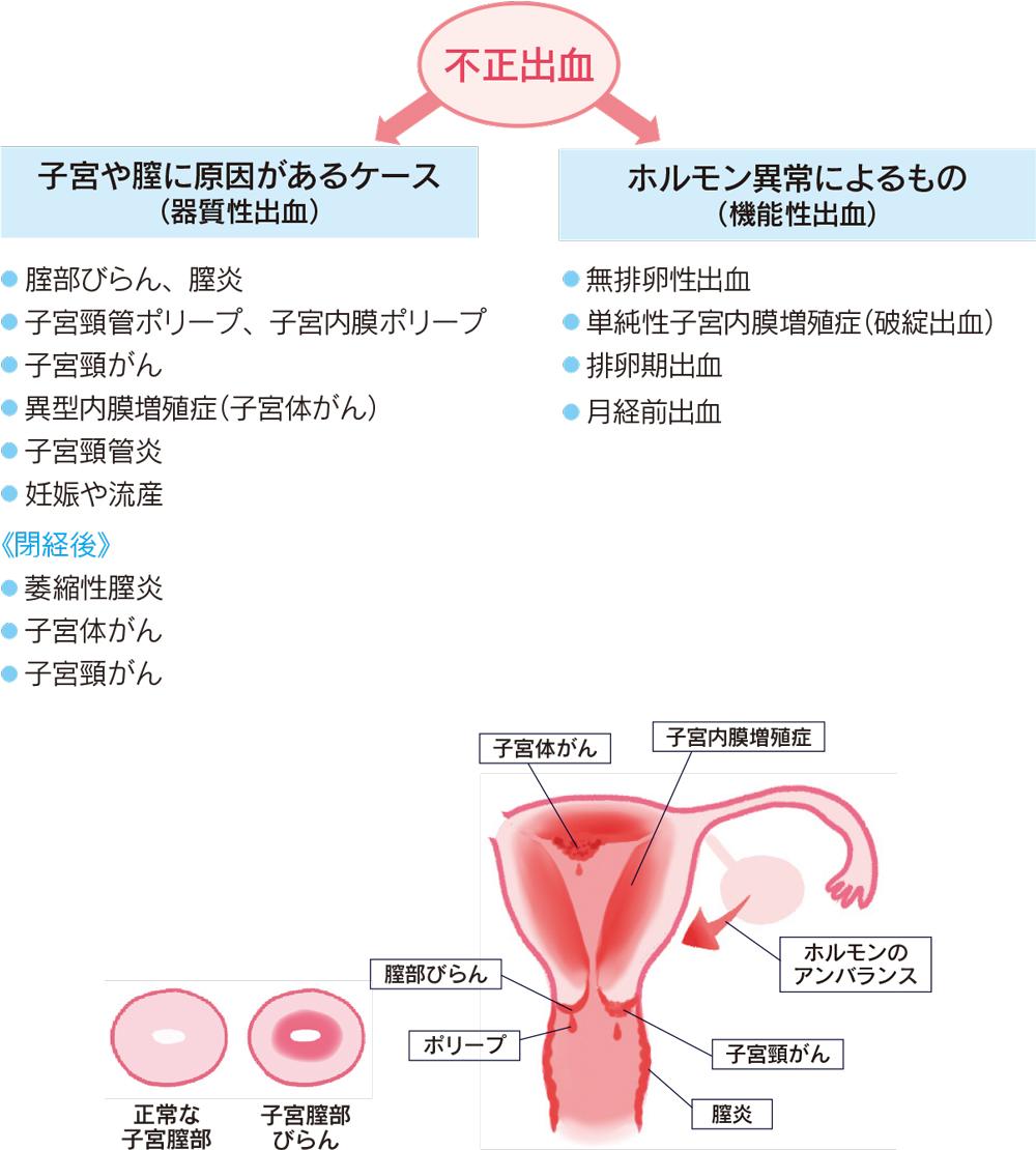 妊娠 織物
