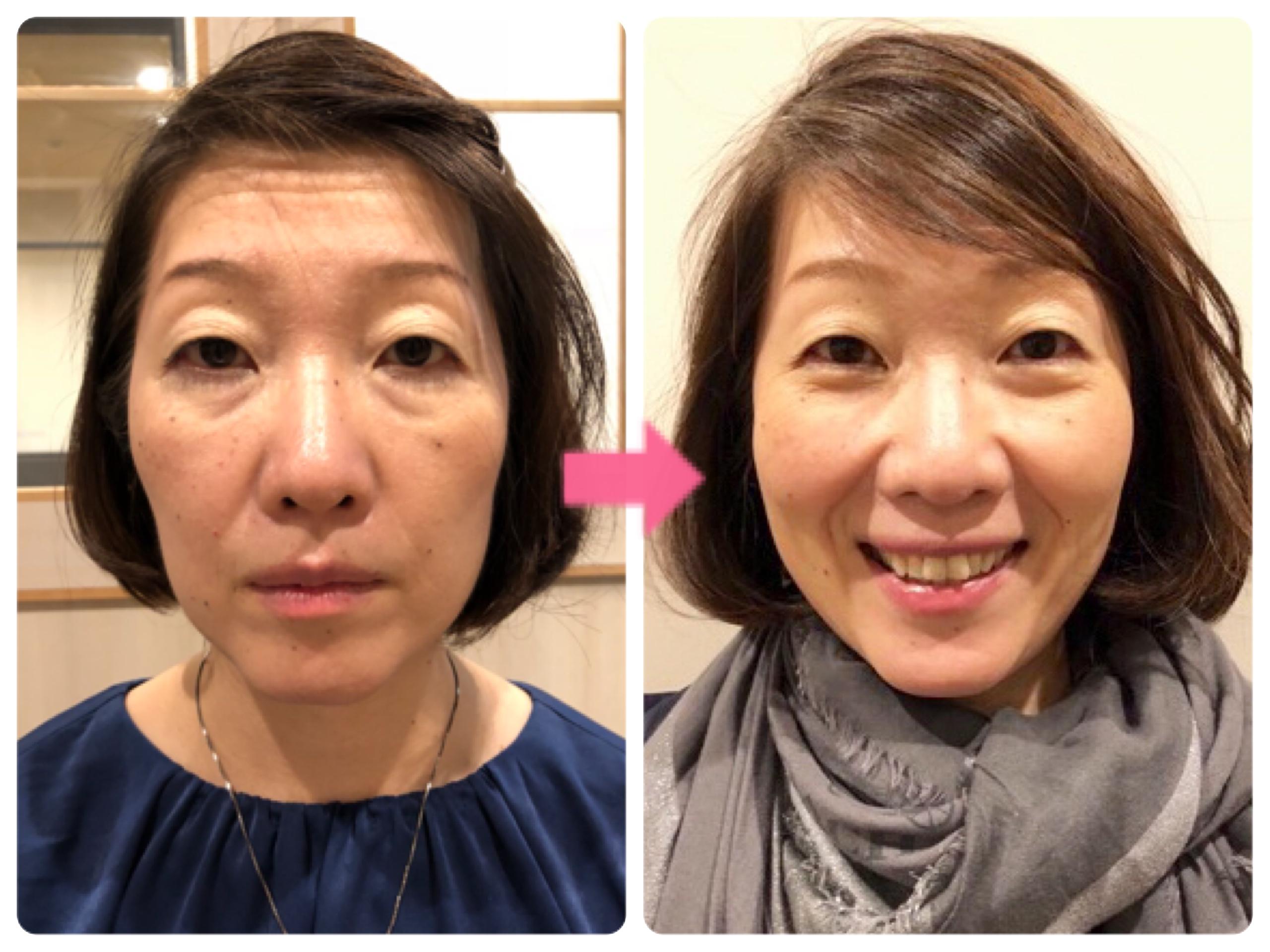 短期間でも顔ヨガでこんなにお顔は変わります!
